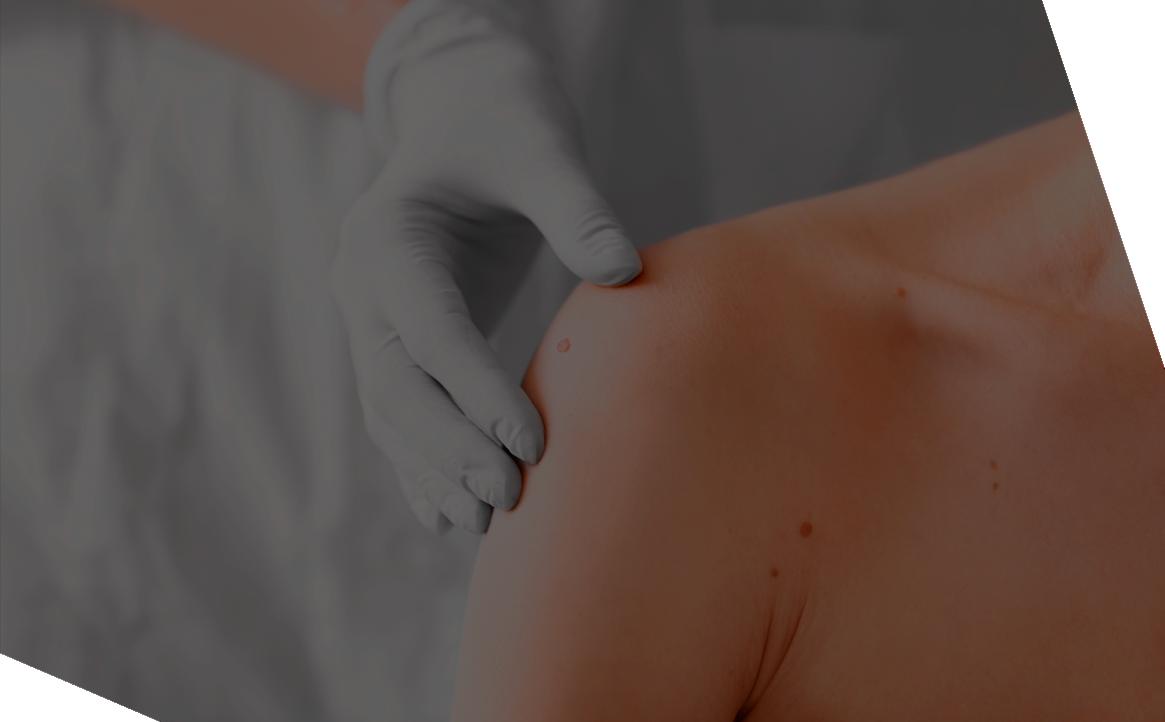 Devintec Pharma therapeutic area - Dermatology